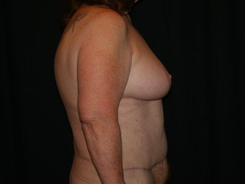 Breast Lift 03 After - 3