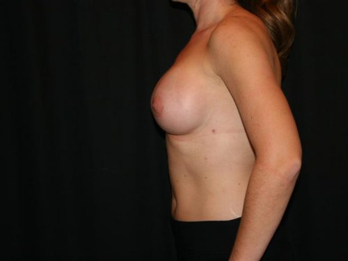 Breast Augmentation 06 After - 3
