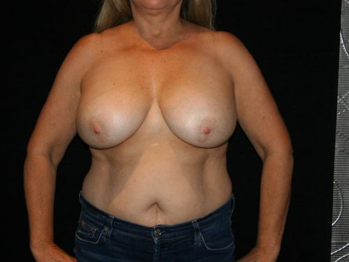 Breast Lift 04 Before
