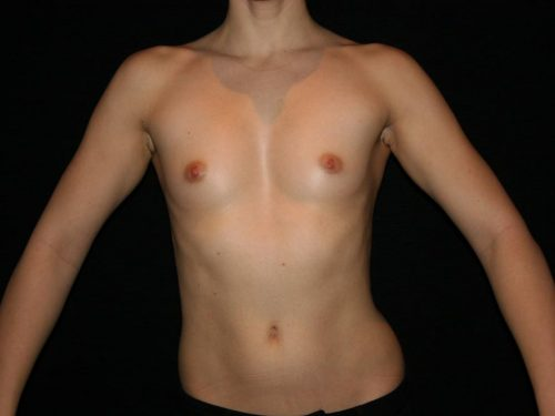 Breast Augmentation 07 Before