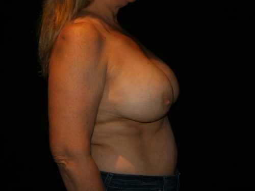 Breast Lift 04 Before - 3