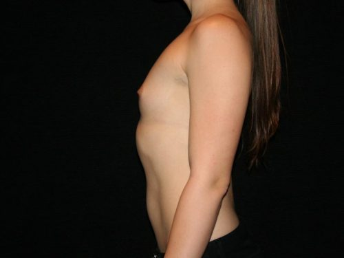 Breast Augmentation 07 Before - 2