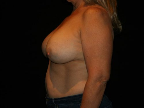 Breast Lift 04 Before - 2