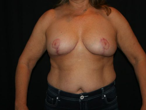 Breast Lift 04 After
