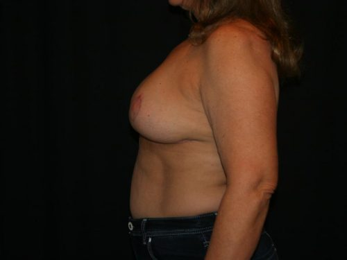 Breast Lift 04 After - 2