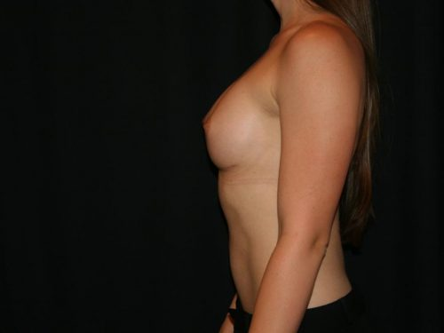 Breast Augmentation 07 After - 2