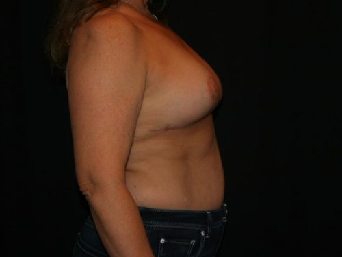 Breast Lift 04 After - 3