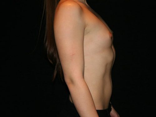 Breast Augmentation 07 Before - 3