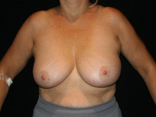 Breast Lift 05 Before