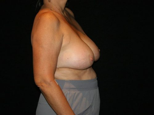 Breast Lift 05 Before - 3