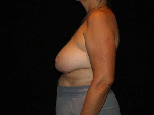 Breast Lift 05 Before - 2