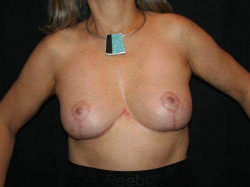 Breast Lift 05 After