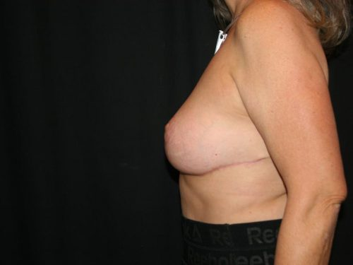 Breast Lift 05 After - 2
