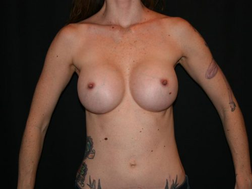Breast Augmentation 08 After