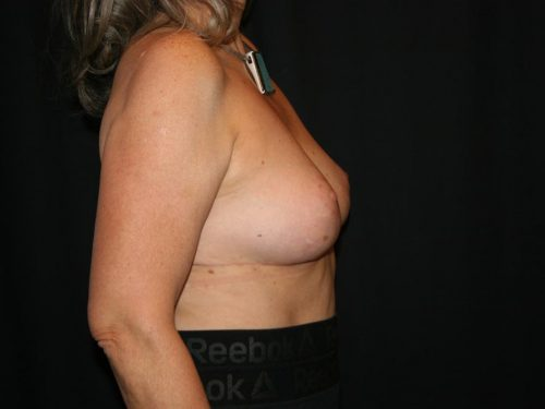 Breast Lift 05 After - 3
