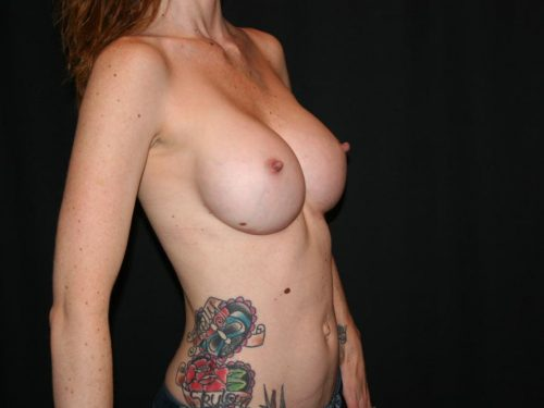 Breast Augmentation 08 After - 2