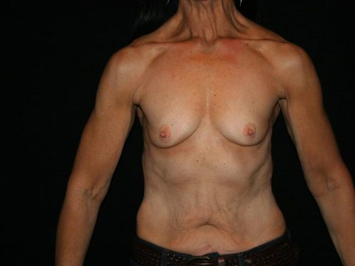 Breast Augmentation 09 Before