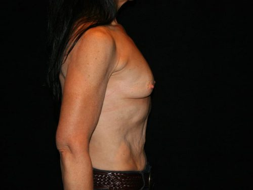 Breast Augmentation 09 Before - 2