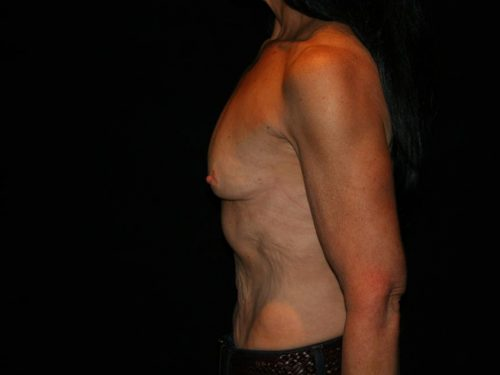 Breast Augmentation 09 Before - 3