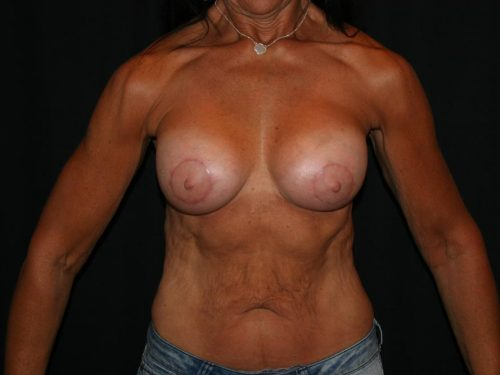 Breast Augmentation 09 After