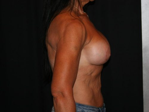 Breast Augmentation 09 After - 2
