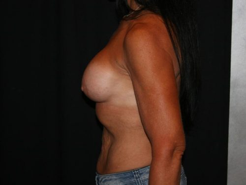 Breast Augmentation 09 After - 3