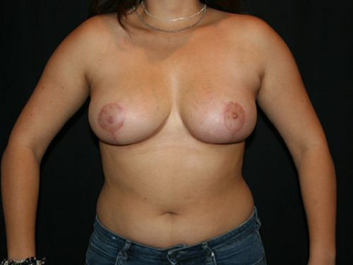 Breast Lift 06 After