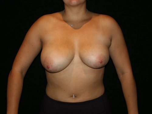 Breast Lift 06 Before