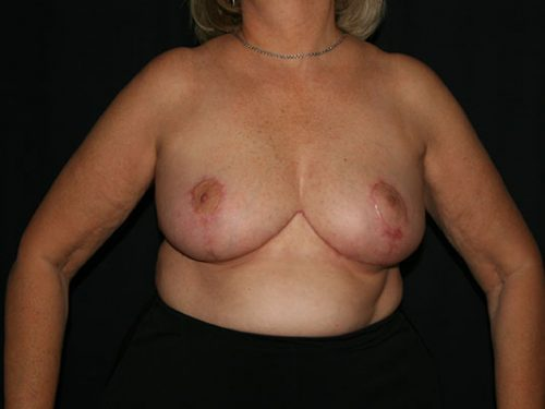 Breast Lift 07 After