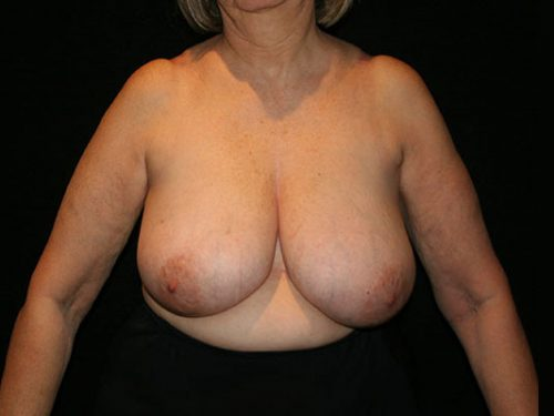 Breast Lift 07 Before