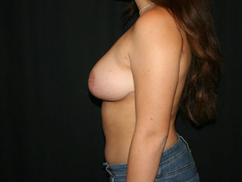 Breast Lift 06 After - 2