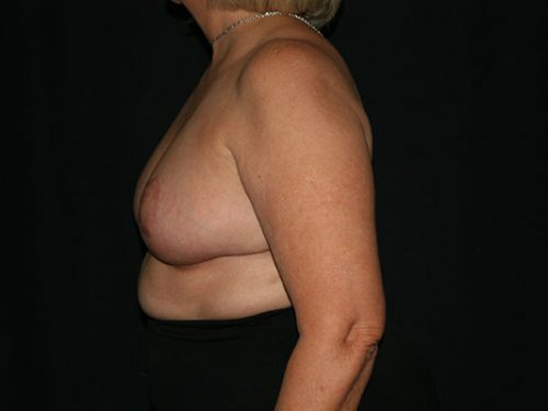 Breast Lift 07 After - 2