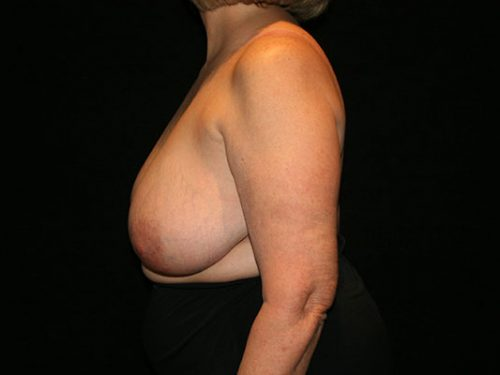 Breast Lift 07 Before - 2