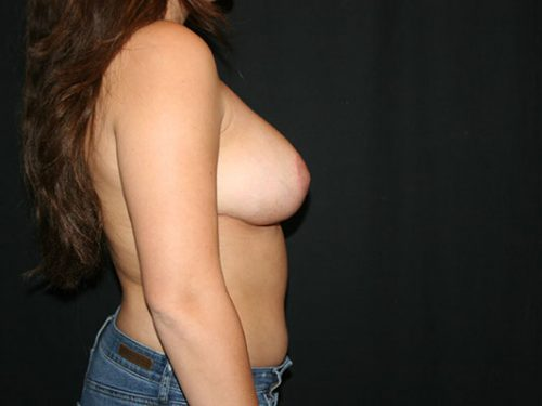 Breast Lift 06 After - 3
