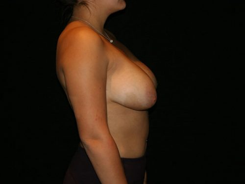 Breast Lift 06 Before - 3