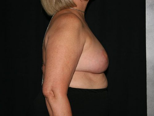 Breast Lift 07 After - 3