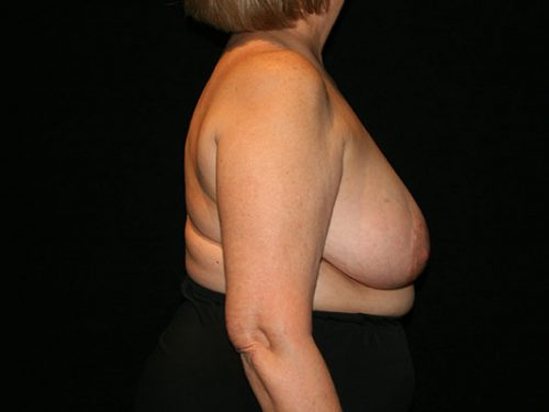 Breast Lift 07 Before - 3