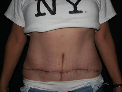 Tummy Tuck 07 After