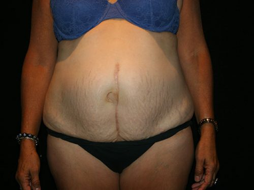 Tummy Tuck 07 Before
