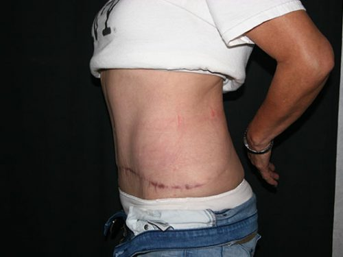 Tummy Tuck 07 After - 2