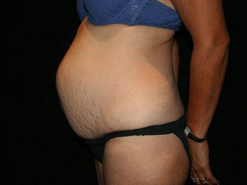 Tummy Tuck 07 Before - 2