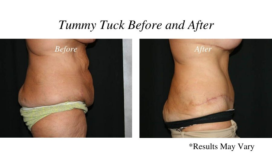 Before and after image showing the results of a tummy tuck performed by Dr. Bonaldi in Reno, Nevada.