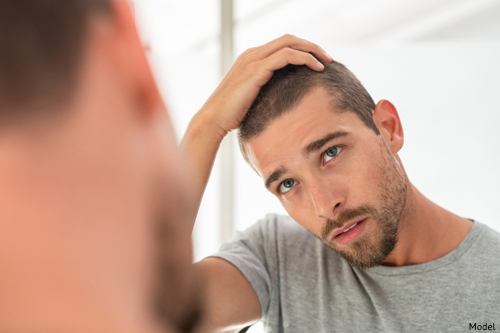 Male model checking hairline in mirror