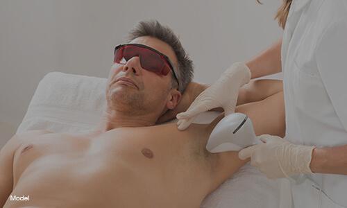 laser hair removal model